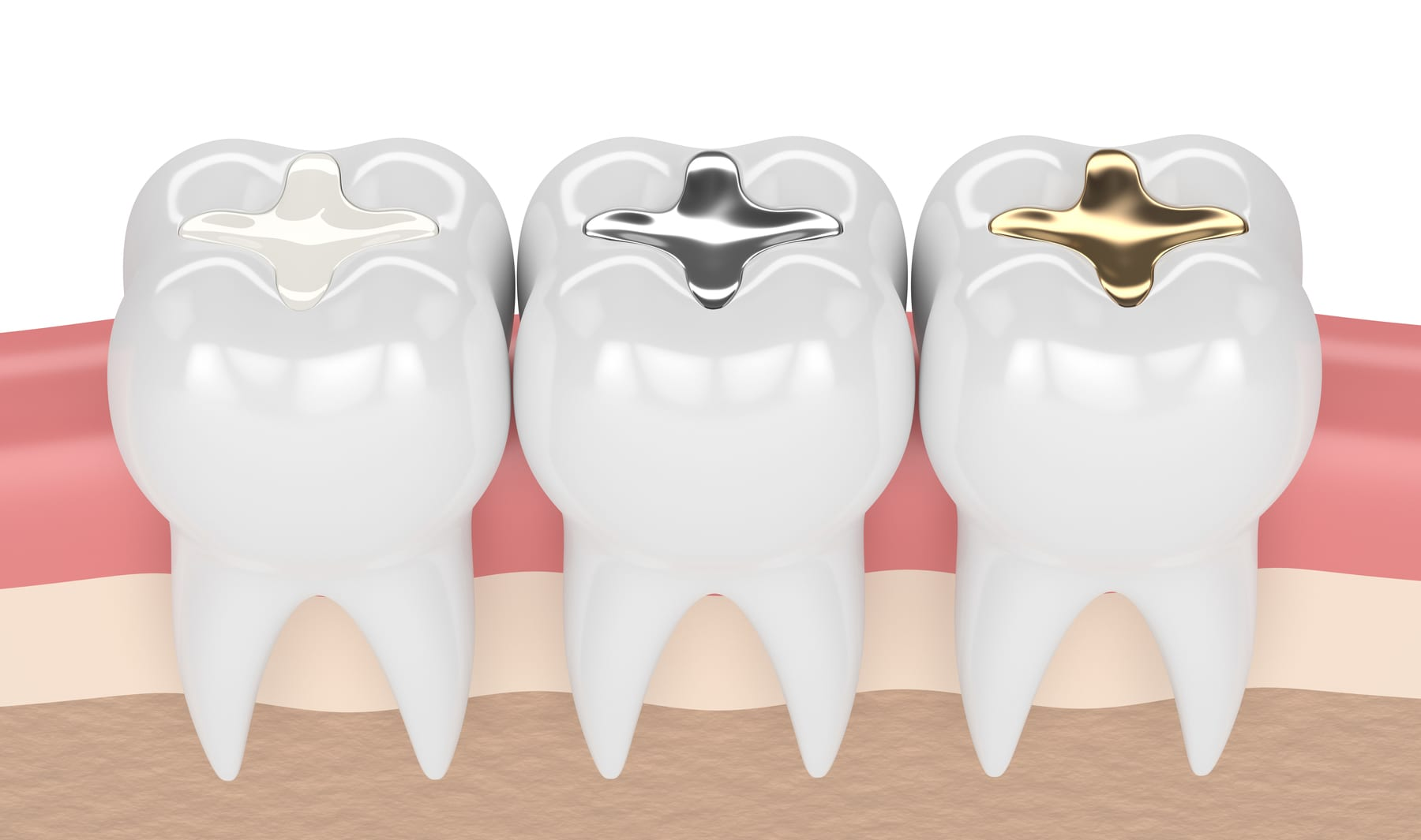teeth with gold, amalgam and composite inlay dental filling in gums