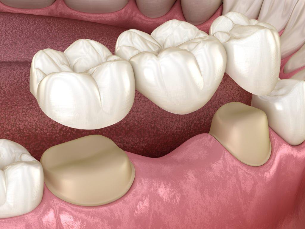 Dental bridge of 3 teeth over molar and premolar