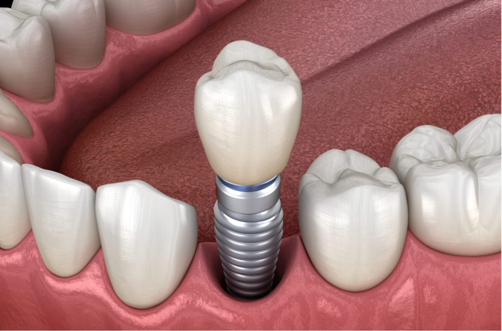 Premolar tooth recovery with implant