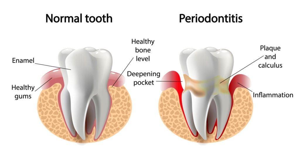 difference b/w normal tooth and periodontitis