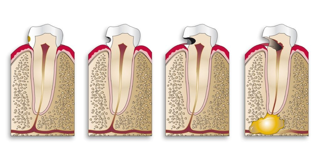 Diagram showing the progression of a cavity