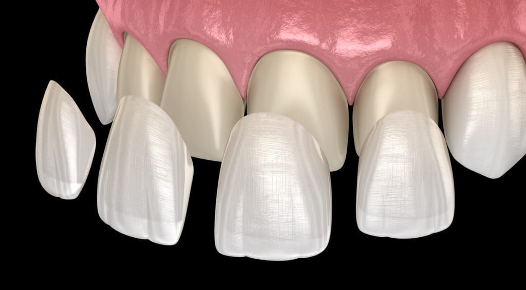Dental veneers being applied to imperfect teeth