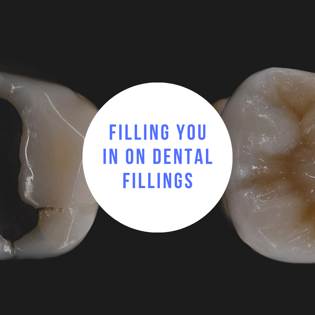 Filling You In On Dental Fillings
