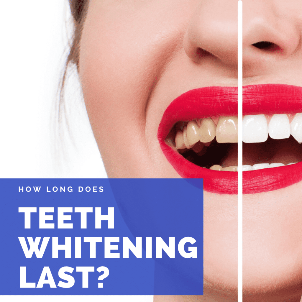 How Long Does Teeth Whitening Last?