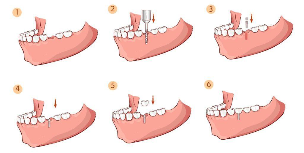 dental implant procedure in six steps
