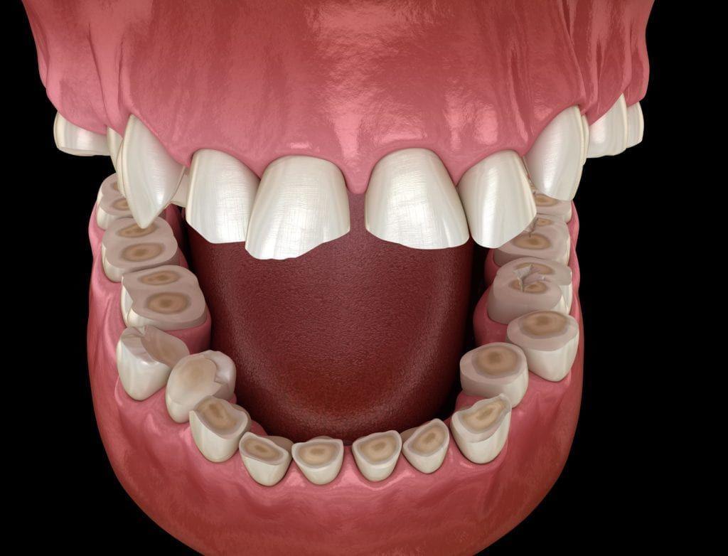 Teeth worn down by bruxism